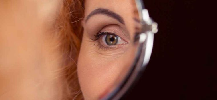 Is Eyelid Hygiene Important?