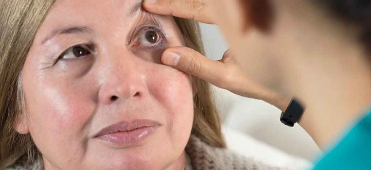 What's the Connection Between Dry Eye and Migraines?