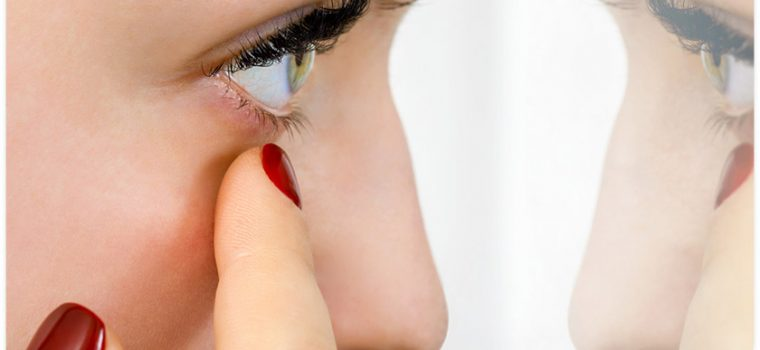 Blocked Tear Ducts – Symptoms and When to See an Expert
